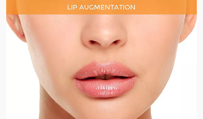 Things to know about lip fillers – white city